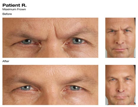 Botox Before and After Photos - Bellingham, WA