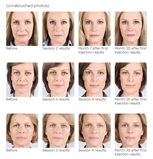 before-after-sculptra-treatment-washington