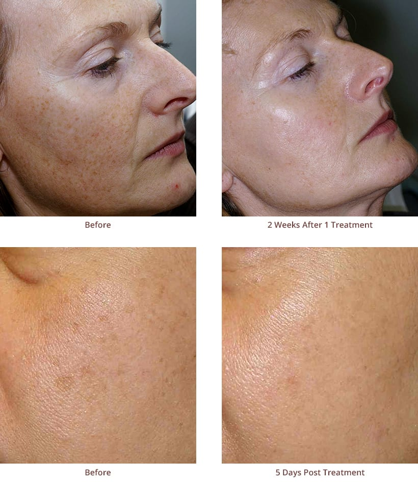 limelight-facial-before-after-photos