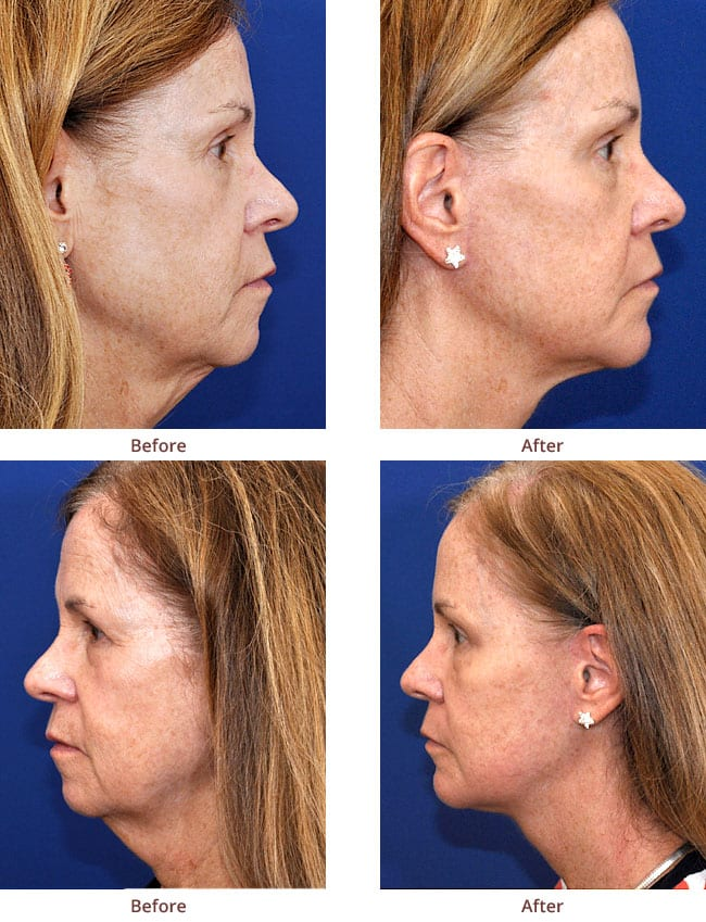 before-after-photo-Necklift-Browlift-Chin-Implant