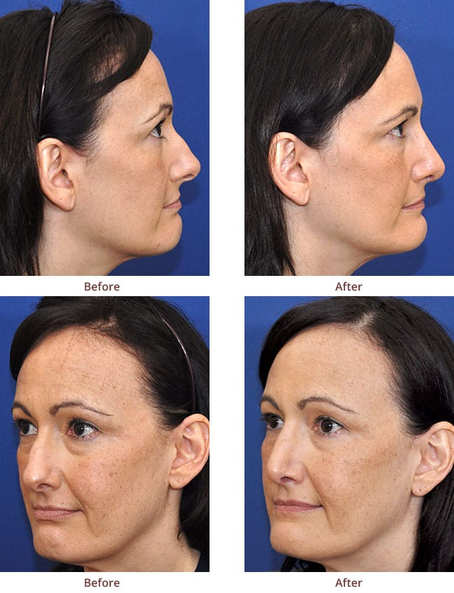 before-after-photo-Rhinoplasty