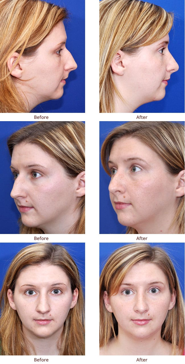 before-after-photo-Rhinoplasty2