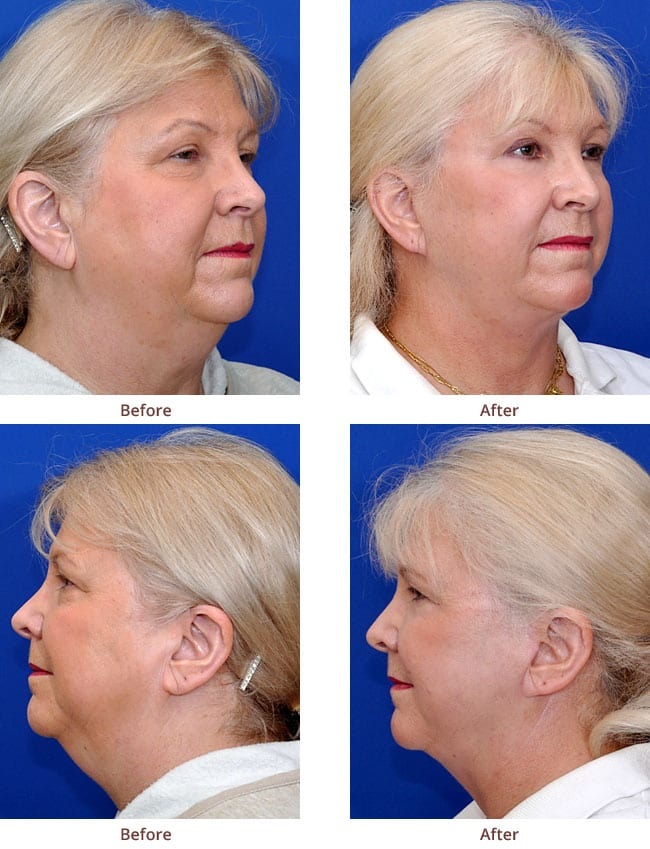 before-after-photo-facelift-lipo