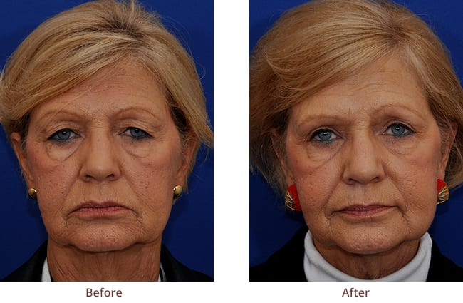 before-after-photo-upper-eyelid-surgery2