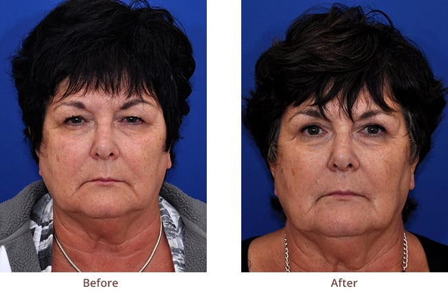 eyelid-surgery-before-after-photos