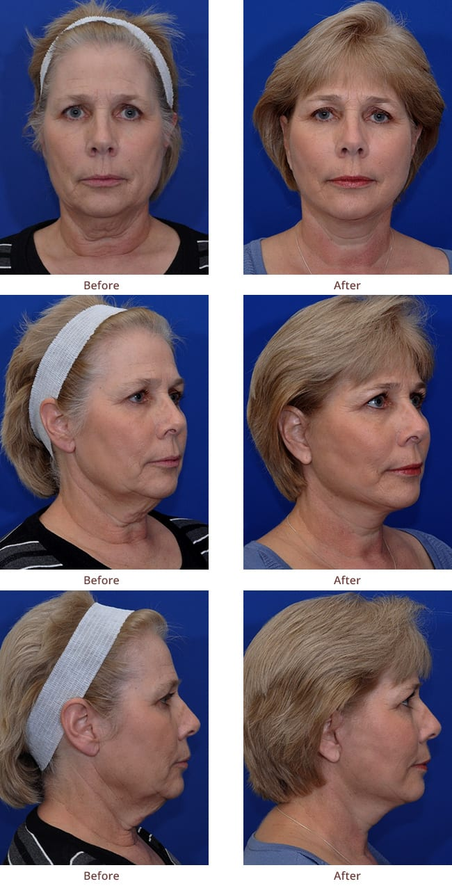 facelift-before-after-photos