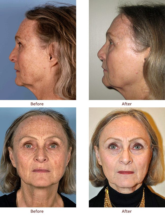 fractional-laser-before-after