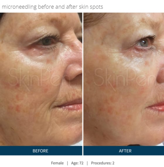 SkinPen-microneedling-before-and-after-photo-of-face