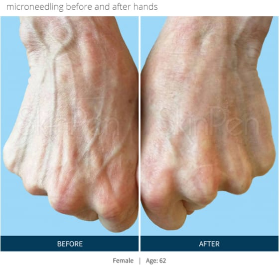 SkinPen-microneedling-before-and-after-photo-of-hands