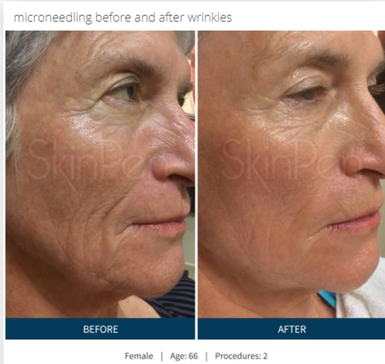 SkinPen-microneedling-before-and-after-photo-wrinkles