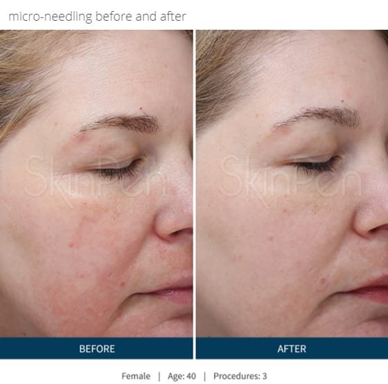 SkinPen-microneedling-before-and-after-photo