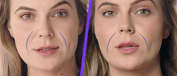 Before-and-after-Juvederm-vollure-in-Bellingham-WA