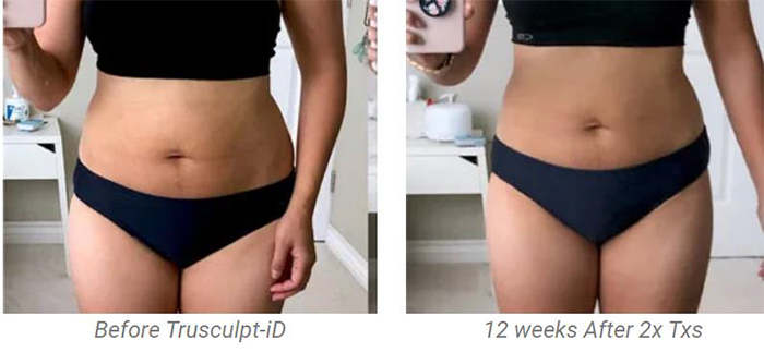 before-and-after-truSculpt-in-Bellingham-WA