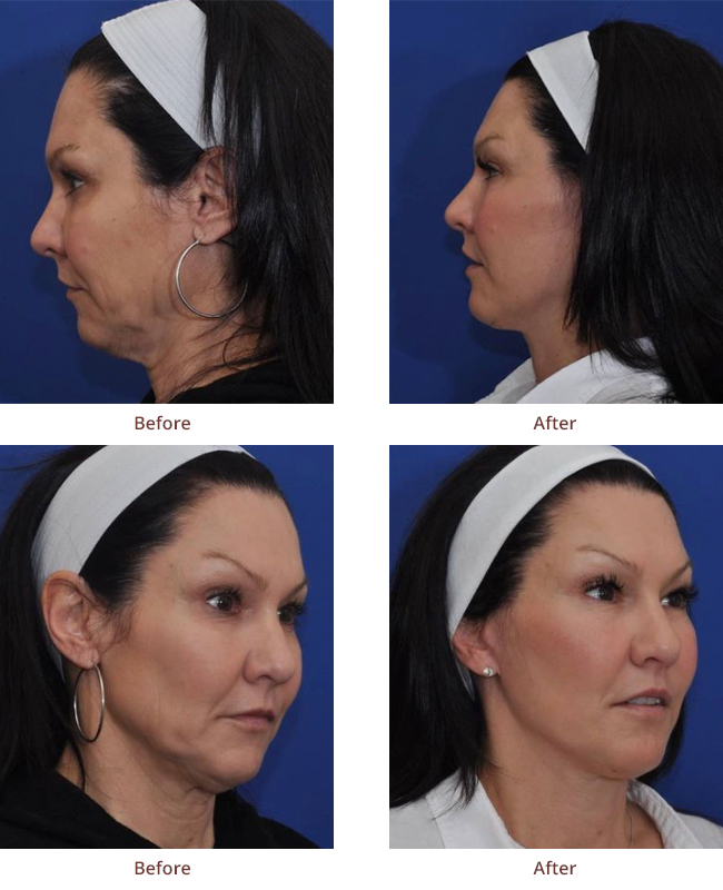 mini-facelift-surgery-Bellingham-WA-before-and-after-photos